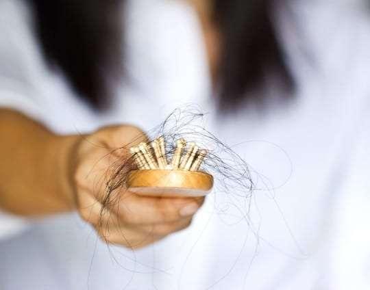 Alopecia femenina, tipos y causas